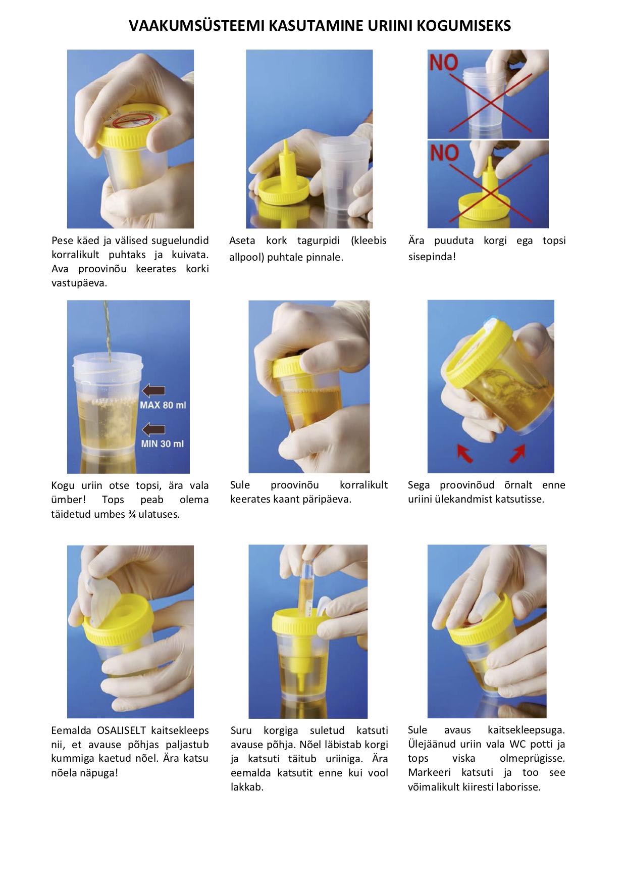 Vaakumsüsteemi kasutamine uriini kogumiseks / использование вакуумной системы для сбора мочи